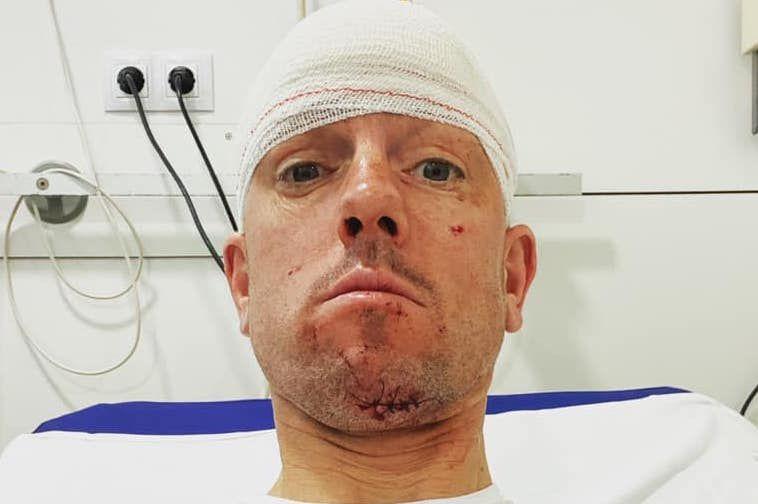 """Frederik Van Lierde ongeluk op training in Spanje: """"Had veel erger kunnen zijn"""""""